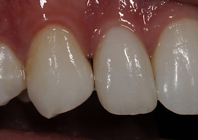2_I._tri_in_veneers_in_position