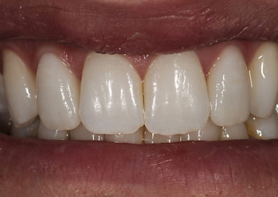 2_J.__e.Max_veneers_after