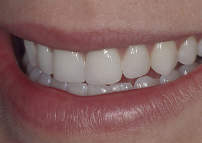 3_B._after_4_Porcelain_Veneers