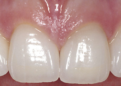 3_D._after_4_porcelain_veneers