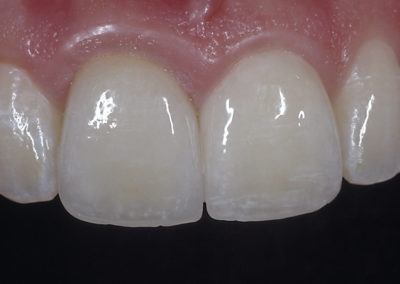 4_B._after_Crown__Veneer
