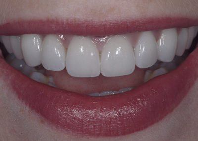 5_B._after_10_Porcelain_Veneers