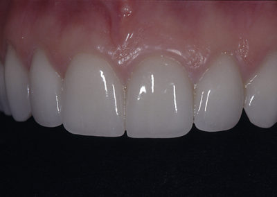 5_C._after_veneers_with_black